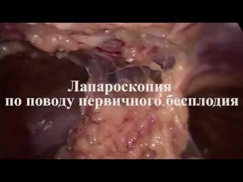 Лапароскопия при бесплодии