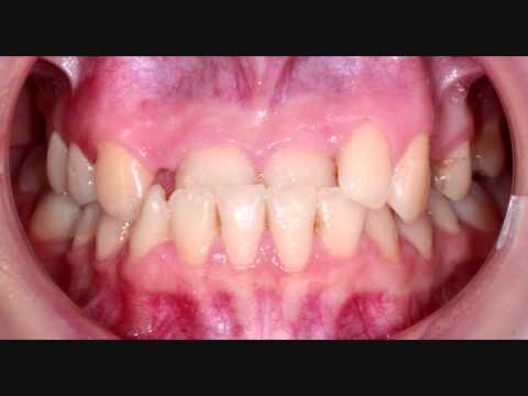 Стабильность результатов ортодонтического лечения