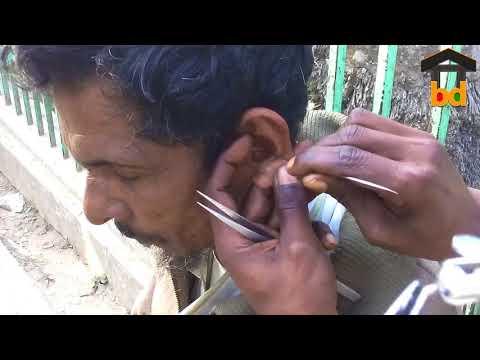 ►Grandpa!!! Ear Cleaning at Roadside II He Do It Very Less Price