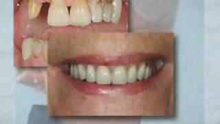 Teeth in a Day Dental Implants at Alouf Dentistry Salem Roanoke, VA Thumbnail