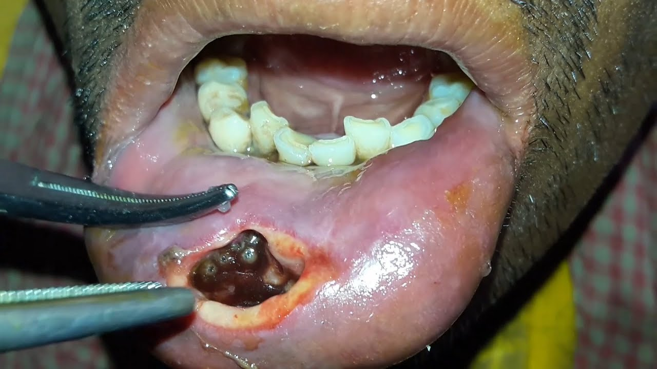 Traumatic Lower Lip Myiasis—(#TheyNastyYall)