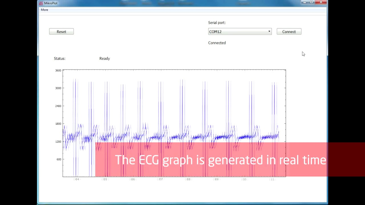 Real time ECG graph in Windows - MikroPlot app by MikroE