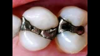 Failing Amalgam/ Silver Fillings Thumbnail