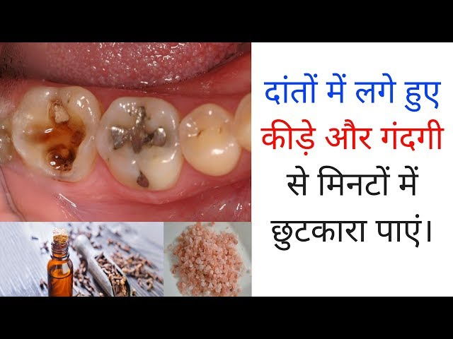 ?????? ??? ??? ??? ???? ?? ????? ?? ?????? ??? ??????? ????? How To Get Rid Of Cavities In Hindi