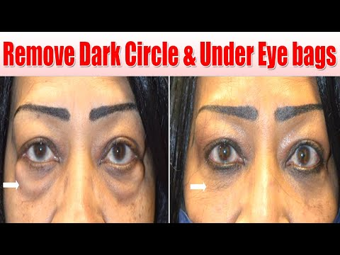i Removed DARK CIRCLES in 5 Days with Aloevera Gel! Remove Dark Circle & Under Eye bags