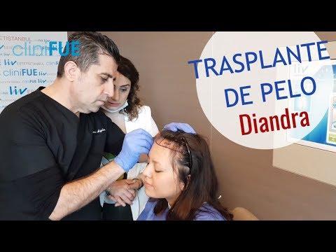 La decisión de Diandra sobre su TRASPLANTE DE PELO - Episodio 1