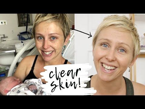 Get rid of pregnancy pigmentation naturally // treat melasma with natural products