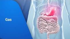 hqdefault - Back Pain Voltaren Gel