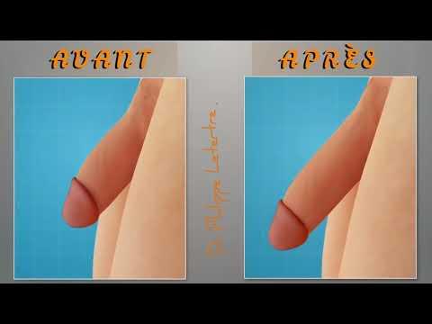 chirurgie estetică pe penis