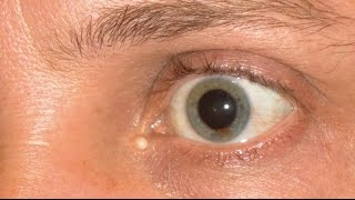 Spots In Vision, Spots In Front Of Eyes, Eye Floaters Symptoms,  What Causes Floaters In Your Eye