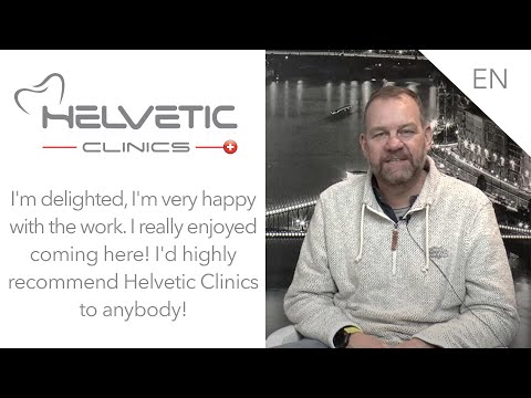 Sinus-lift, 5 implants, 26 zirconia crowns made with Arcus Digma - Helvetic Clinics