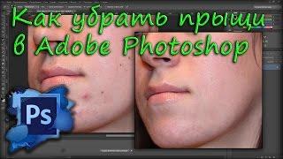Как убрать прыщи и родинки в Adobe Photoshop(В этом уроке я покажу вам как убрать родинки и прыщи в программе Adobe Photoshop. Все это мы проделываем с помощью..., 2015-06-28T16:06:23.000Z)