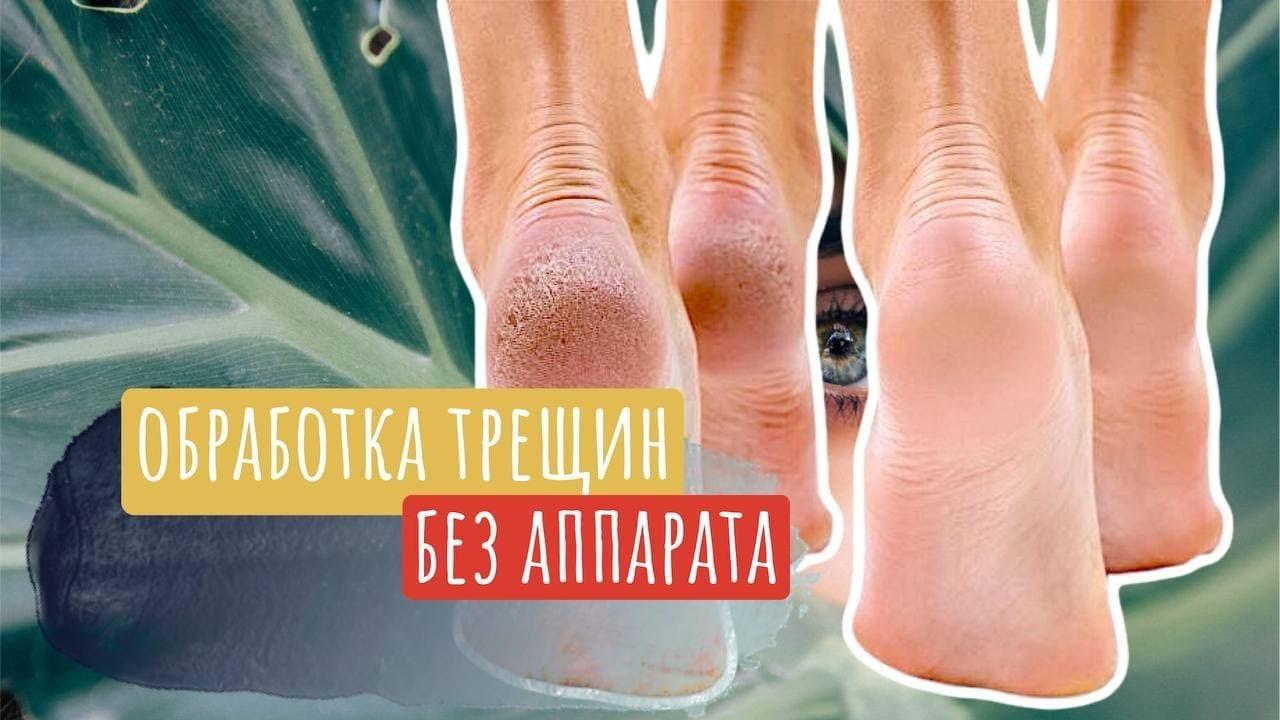 Обработка трещин на пятках: уход за ногами | Классический педикюр