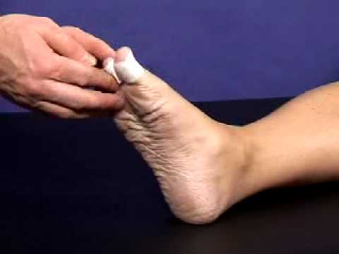 How to prevent blisters taping technique