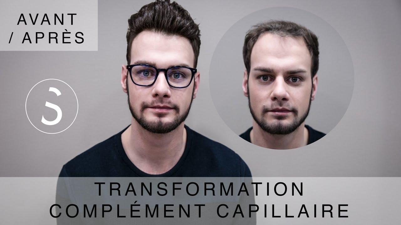 ► Complément capillaire - Transformation