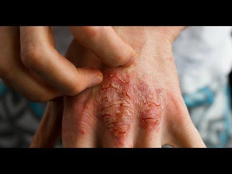 O que fazer quando o tornozelo incha