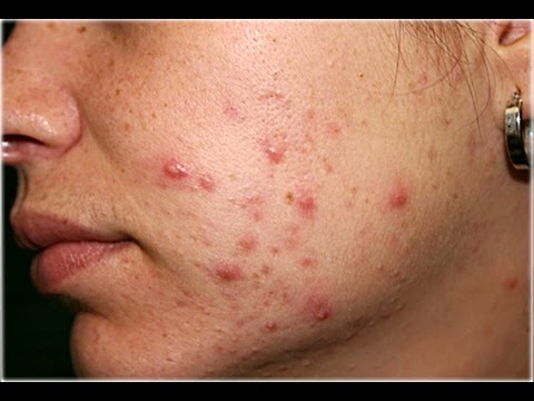 hqdefault - How To Use Dandelion Treat Acne