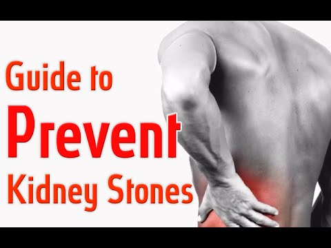 Kidney Stones - How to Prevent KidneyStones