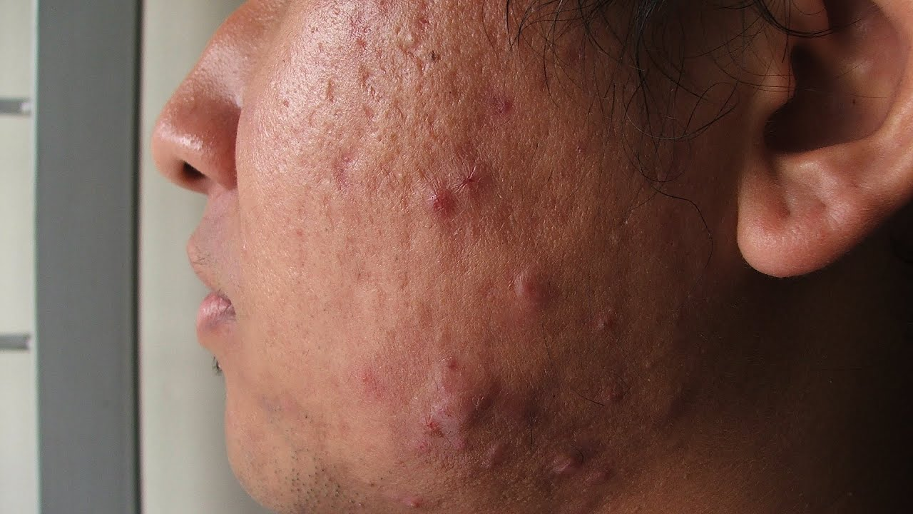 what is cystic acne acne treatment youtube