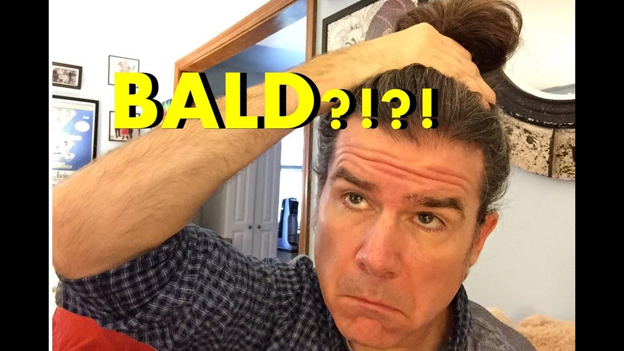 Men S Long Hair Will Your Man Bun Make You Bald Youtube