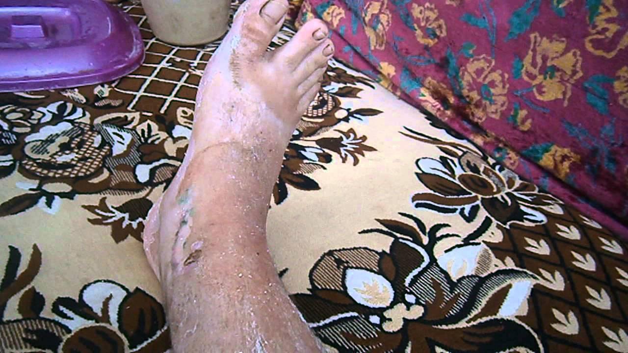 Сняли гипс на ноге после перелома лодыжки - YouTube