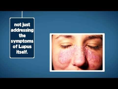 Natural Lupus Treatments, Los Angeles, CA, Orange County, CA, San Diego, CA, Sacramento, CA