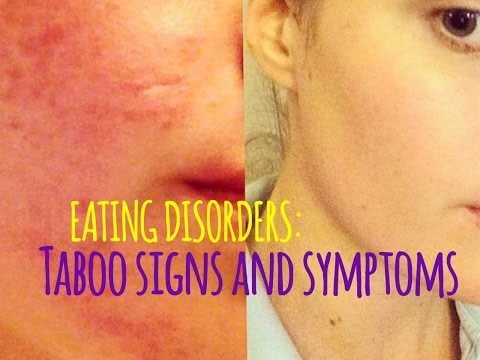 hqdefault - Is Acne A Sign Of Bulimia