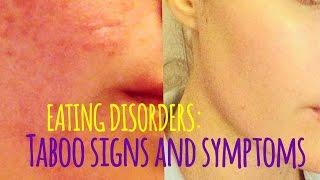 Eating Disorders: Signs & Symptoms We Don't Talk About