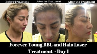 Aloha and welcome to the tiki girl channel. i am doing a vlog of my 1st day treatment experience using combination sciton bbl forever young ha...