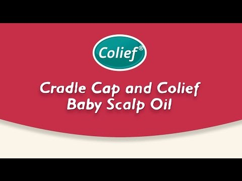 d7c37d64c What is cradle cap and how to treat it with Dawn Kelly