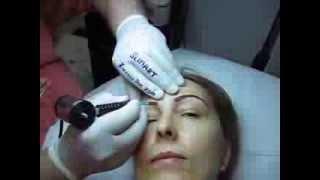 Tatuaj sprancene make-up artist Zarescu Dan Clinica Slimart micropigmentare sprancene