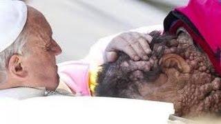 Le Pape François embrasse une personne défigurée