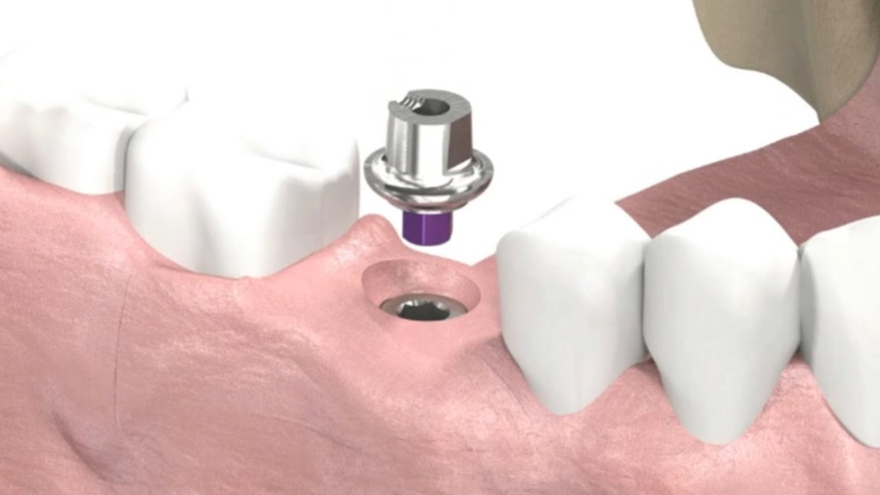 SIC invent Dental Implant - Prosthetic Animation: Single Crown ...