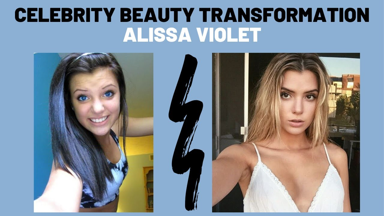 Alissa Violet Plastic Surgery