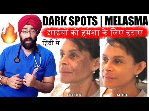 permanently-cure-dark-spots,-झाइयां,-melasma,-hyperpigmentation-or-black-marks-(hindi)-dr.education