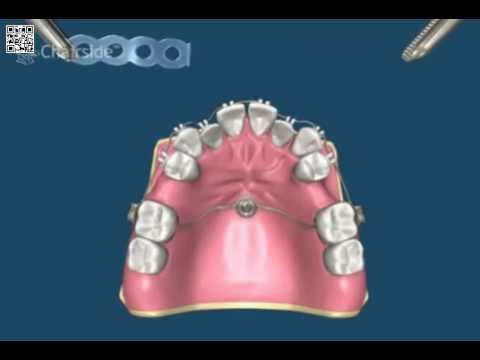 Имплантация зубов в Перми, зубные импланты: цены - Клиника