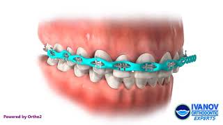 Braces Powerchain and Space Closure. Light Blue Color (Braces Colors).