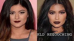 KYLIE JENNER REVERSE PLASTIC SURGERY | NOW - THEN