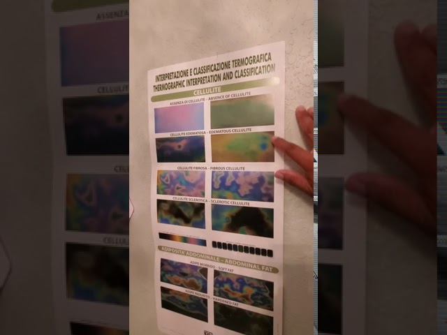 How we use Thermography Imaging!
