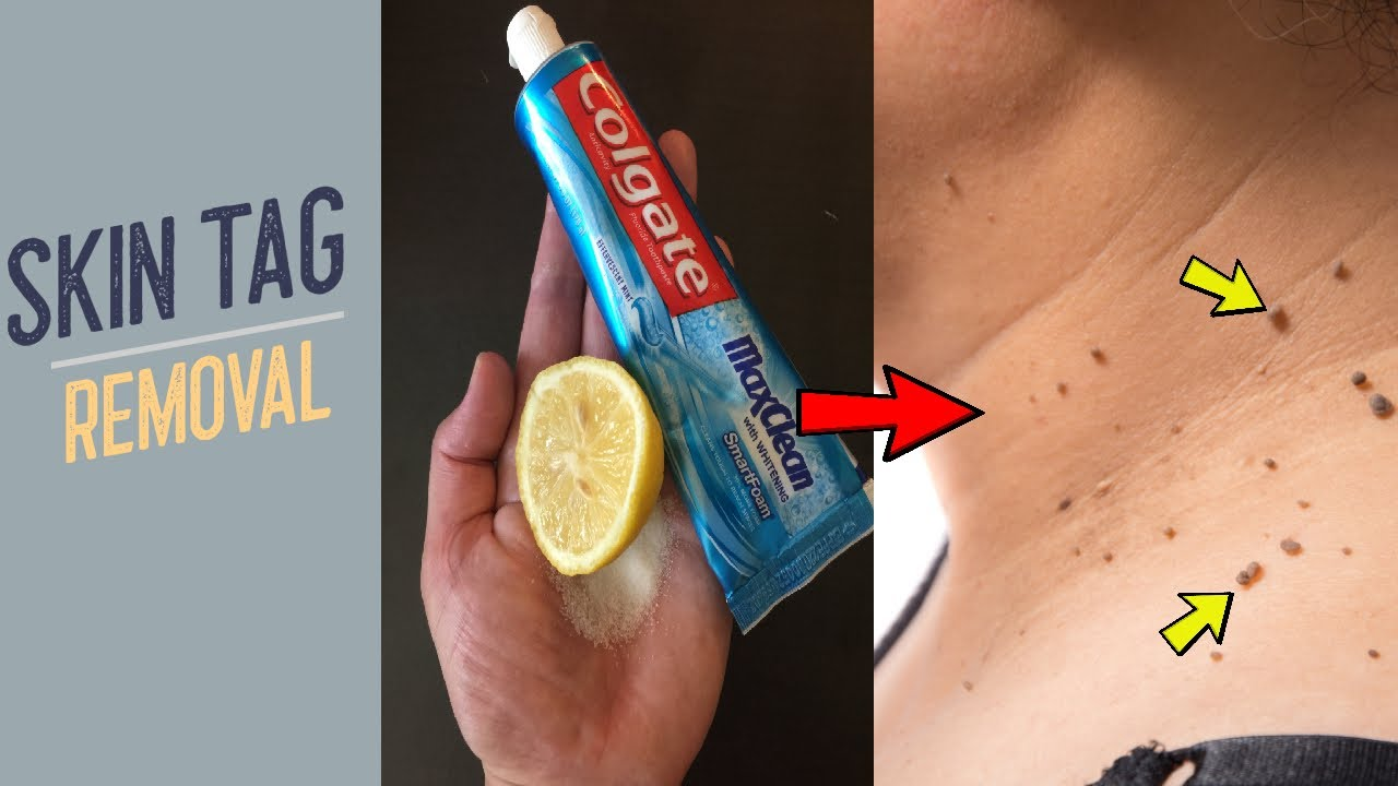 Remove Skin Tags Overnight With Colgate How To Remove Skin Tag