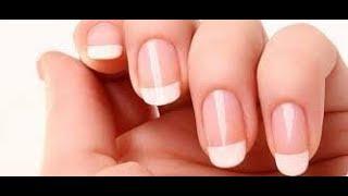 5 вещей, которые ваши ногти сообщат о вашем здоровье