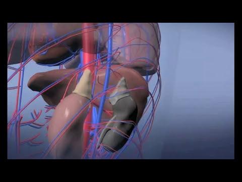 Leven met vasculitis - De ziekte van Wegener