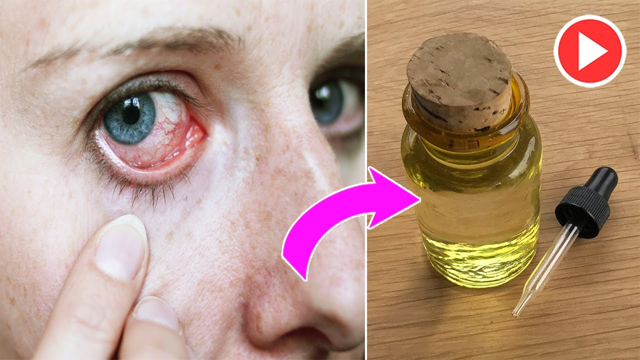 5 Amazing Benefits Of Castor Oil For Your Eyes | Remedies One