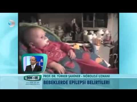 Bebeklerde epilepsi belirtileri