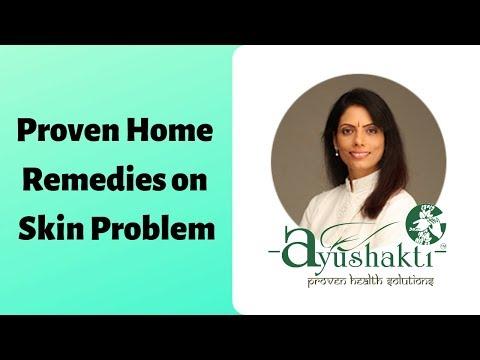 Ayushakti Proven Home Remedies For Skin Problems, Eczema | Smita Naram | Ayushakti Ayurveda