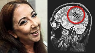 Doctors Think Woman Has A Brain Tumor, But Then They Open Her Skull & Find Something More Horrifying