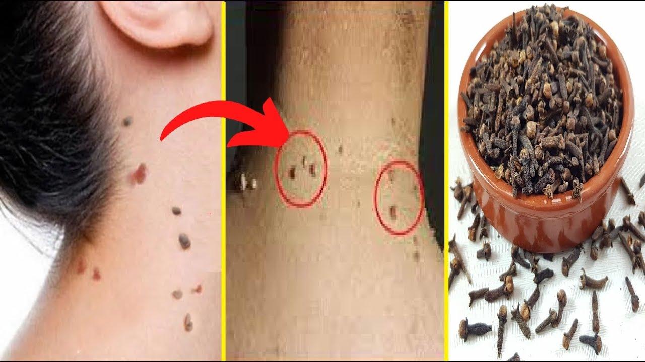 بالقرنفل تخلصي من التآليل والزوائد الجلدية في 3 أيام ستختفي وتموت للأبد كيفية إزالة علامات الجلد