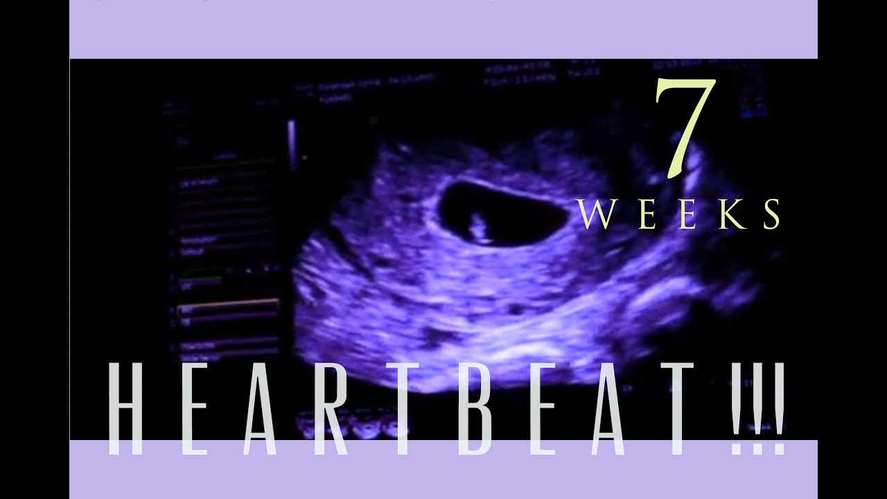IVF Pregnancy: 7 WEEKS + HEARTBEAT!!! - YouTube