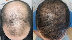 5602 FU's. Hair Transplant by FUE Technique. Advance Alopecia. Injertocapilar.com. 638/2011