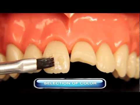 Restoration with Natural Look Resin (Class IV) - YouTube